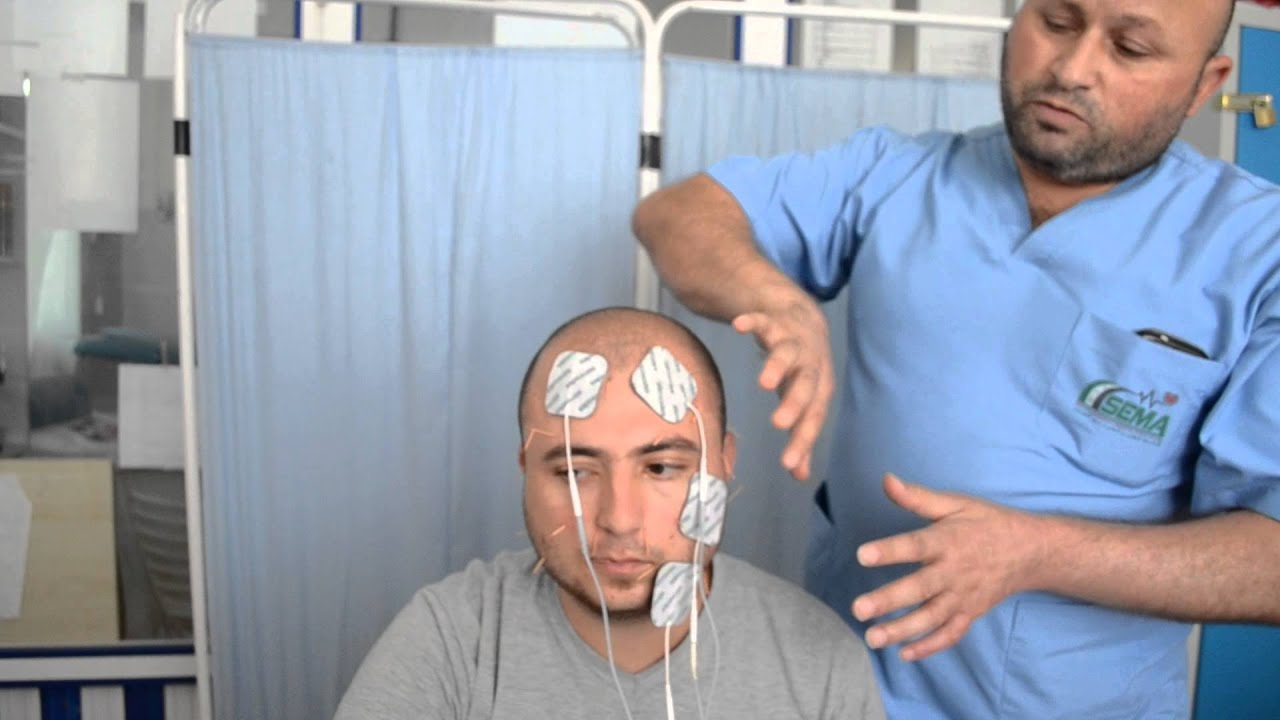 Mischief In The Facial Nerve Youtube