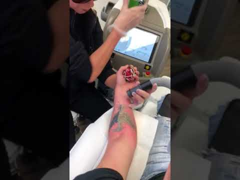 Cover-Up Tattoo Removal by Vanish Laser Aesthetics - Longview, Tyler ...