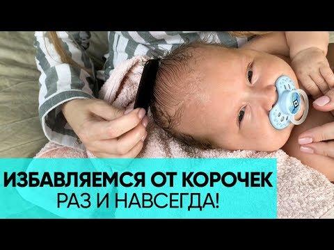 Как убрать леп с головы новорожденного