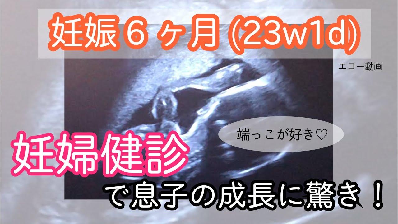 初期 見方 妊娠 エコー 写真