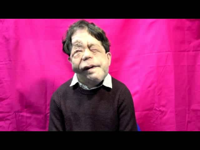 Adam Pearson's story - (Look At Me)