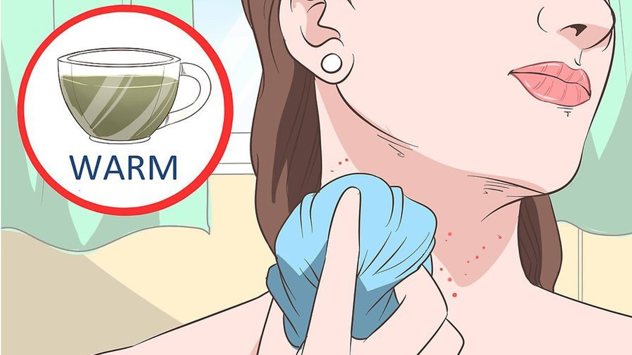 How To Get Rid Of Neck Acne Overnight Get Rid Of Neck Acne Fast And Easy