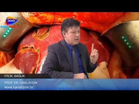 Evre 4 kolon kanseri  nasıl tedavi edilir. drunal