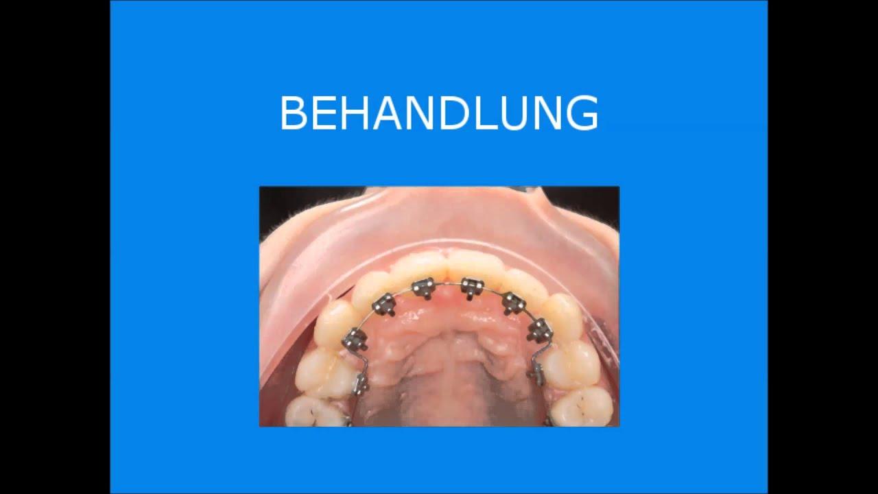 Unsichtbare linguale Zahnspange Fallpräsentation 4 - YouTube