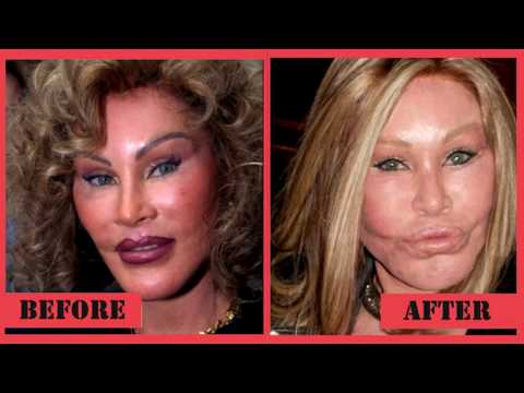 5 Most Expensive Celebrity Plastic Surgeries ||  5 Shocking Plastic Surgery