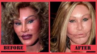 5 Most Expensive Celebrity Plastic Surgeries