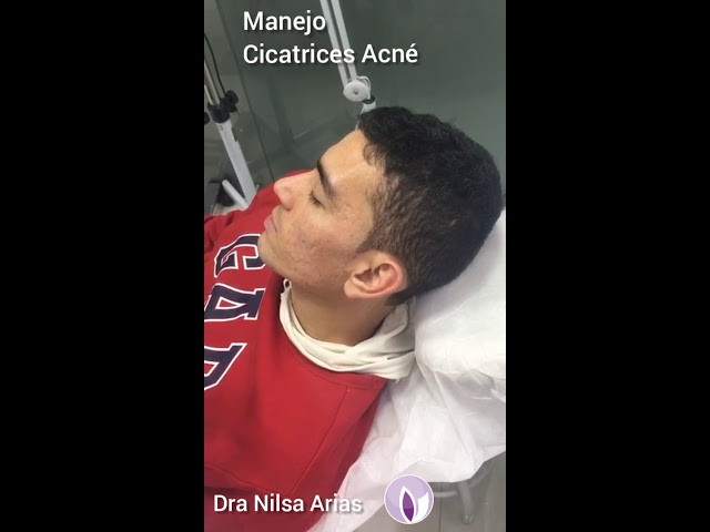 Manejo de Cicatrices By Dra Nilsa Arias