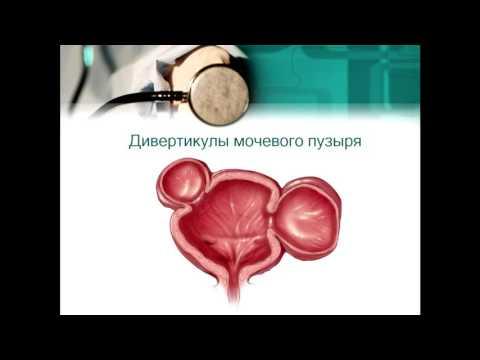Аномалии развития мочевого пузыря, уретры