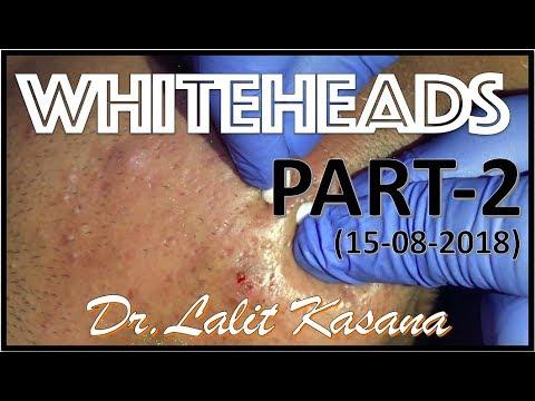 ANTI ACNE TREATMENT PART-2 BY DR LALIT KASANA(15-08-2018)