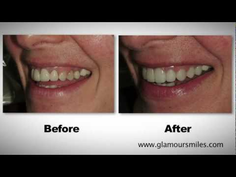 Cosmetic Dental Bridge and Porcelain Crowns on Front Teeth on Elk Grove, Illinois by Dr. Engelberg