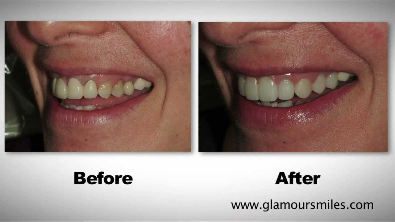 Cosmetic Dental Bridge And Porcelain Crowns On Front Teeth