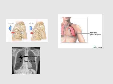 Upper Limb/ Humerus Fractures