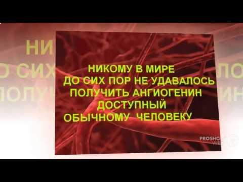 Лечение варикоза лазером флебология национального
