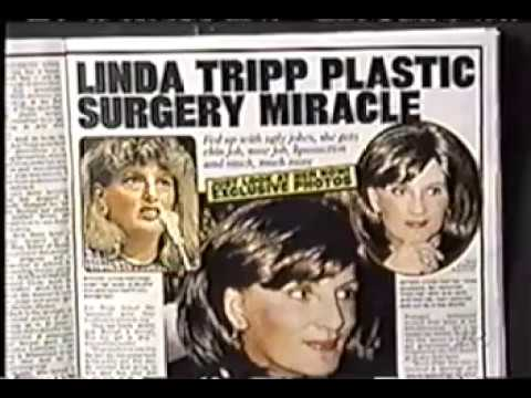 Reasons for Plastic Surgery - Linda Tripp  by Los Angeles Plastic Surgeon, Dr. Geoffrey R. Keyes