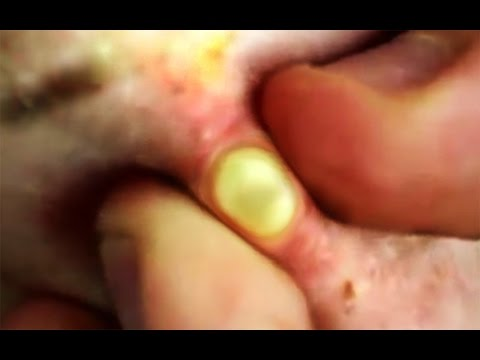 Blackheads and Comedone Popping!  What Makes the Best Acne Video?