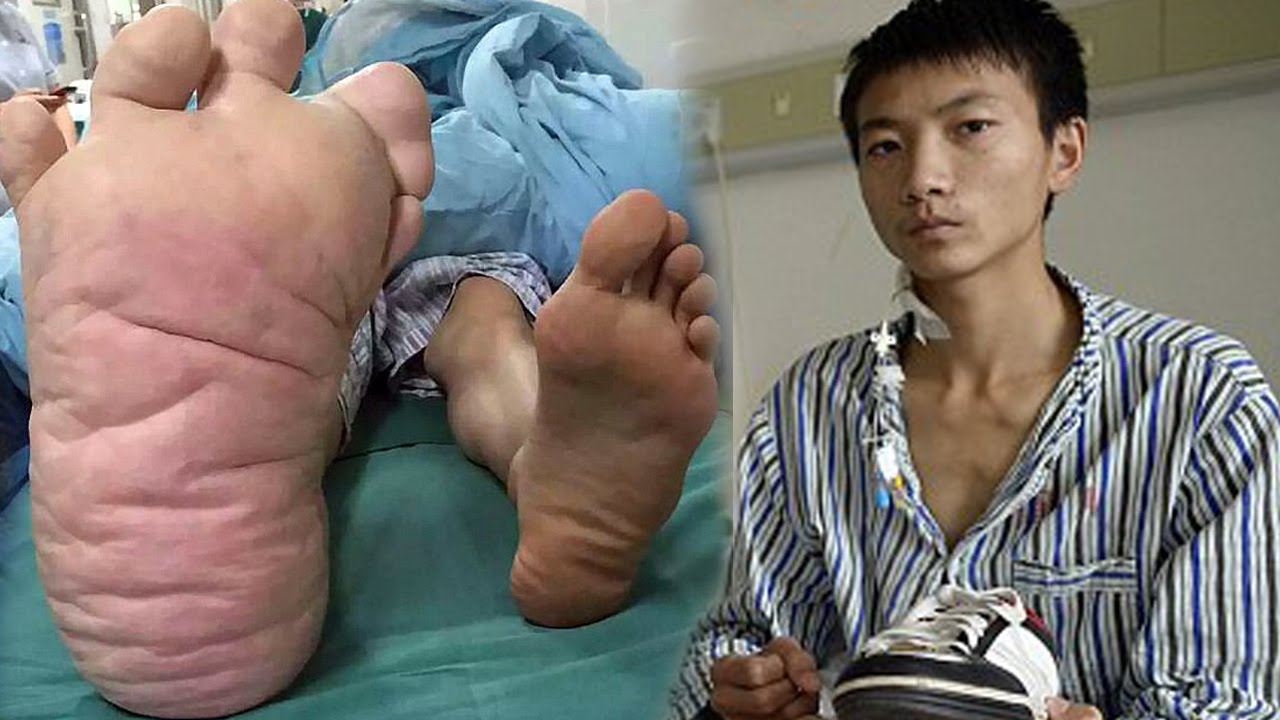 Chinese Man Has The World's Biggest Foot - YouTube