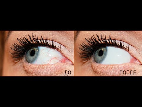 Как убрать вены с глаз в фотошоп (Photoshop)