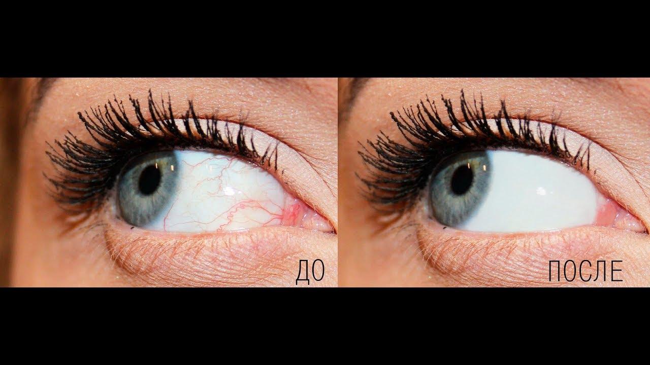 Как отбелить белок глаз на фотографии подачей