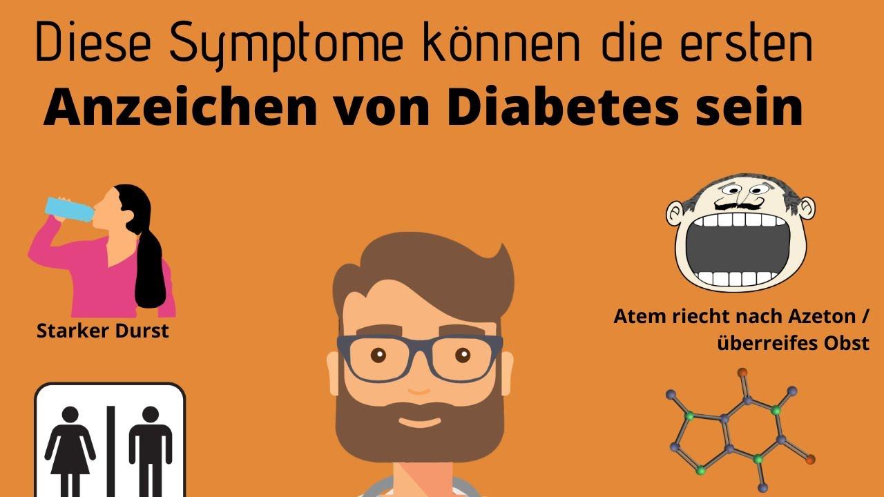 anzeichen diabetes ii