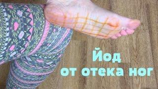 видео 10 простых способов избавиться от отеков ног