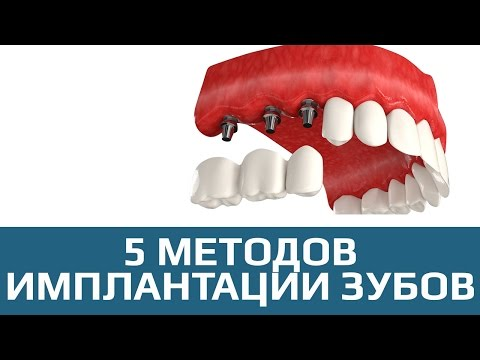 Имплантация зубов -