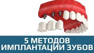 Имплантация зубов. 5 методов имплантации зубов(, 2017-04-11T14:47:04.000Z)
