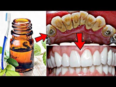 सिर्फ 2 मिनट में गंदे पिले दाँतो को दूध की तरह चमका देगा ये सबसे तेज जबरदस्त नुस्खा   Teeth Whiten
