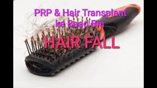 Effect and Condition of my Hair Fall after 6 PRP in 5 Month - Stop Hair Fall with PRP