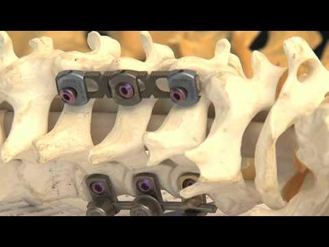 La curvatura de la columna vertebral y la enfermedad de los órganos interiores