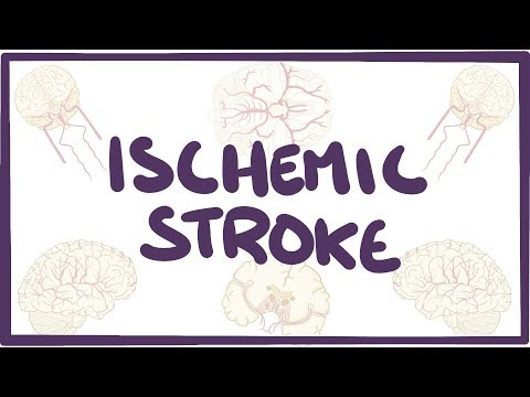Ischemic Stroke - causes, symptoms, diagnosis, treatment, pathology