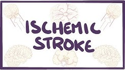 Ischemic Stroke - causes, symptoms, diagnosis, treatment, pathology