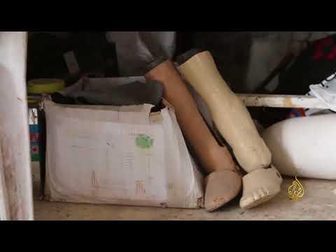 نازح سوري يؤمن أطرفا اصطناعية لمصابي الحرب  - نشر قبل 4 ساعة
