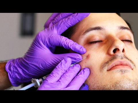 People Get Eye Bag Removal Injections