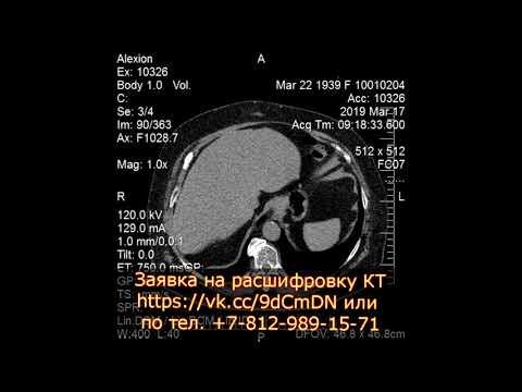 Расшифровка КТ почек и заключение по липосаркоме почки с кистами  и хроническим панкреатитом