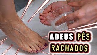 Os creme da para dor pés façanha alívio natural pura