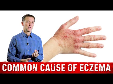 Is Your Eczema Coming from a Salicylate Sensitivity?
