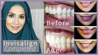 INVISALIGN COMPLETED! Before and After | Amenakin