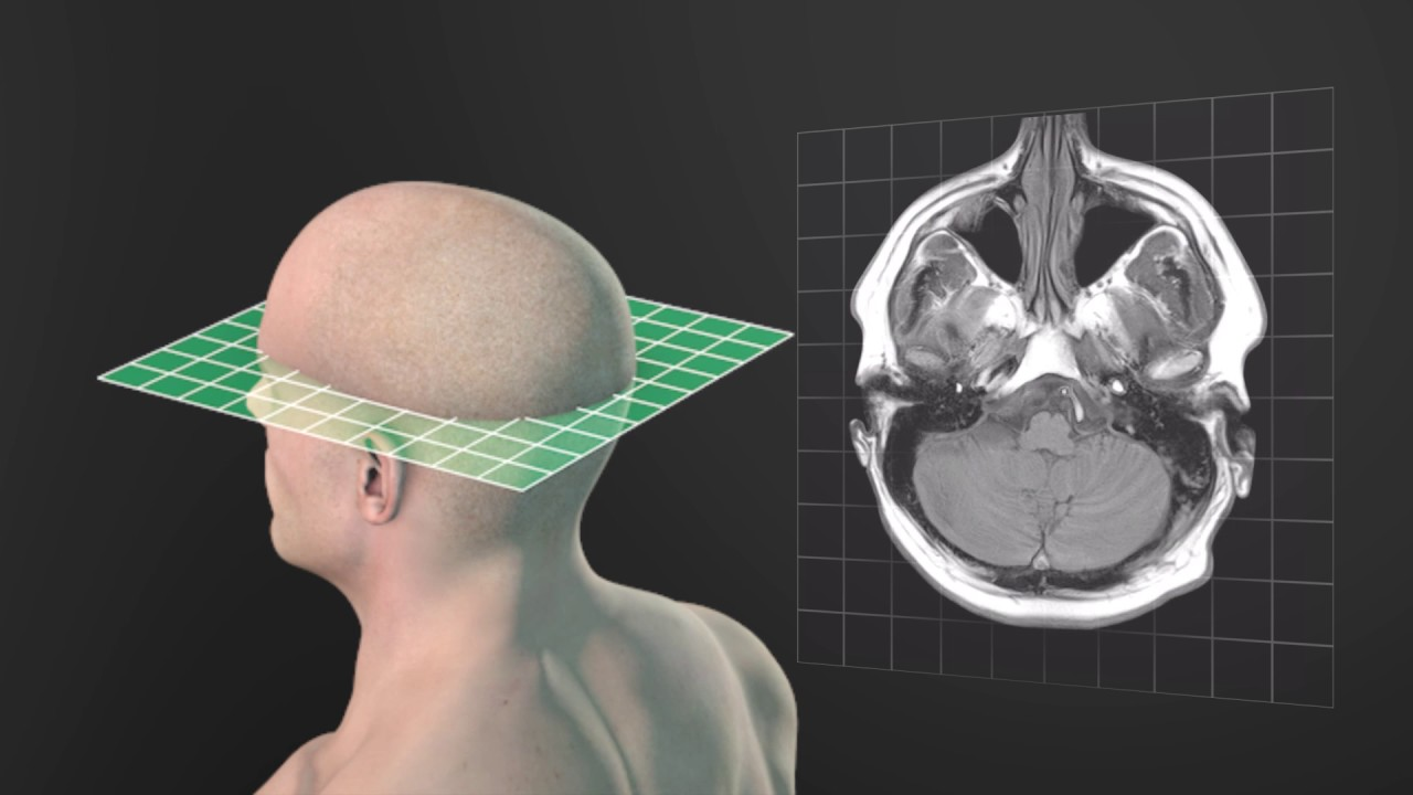 Anatomical Planes Animated Tutorial Youtube