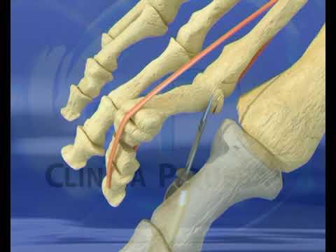 Cirugia dedo garra youtube for Operacion de pies