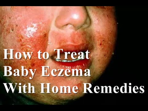 how to get rid of eczema on your face