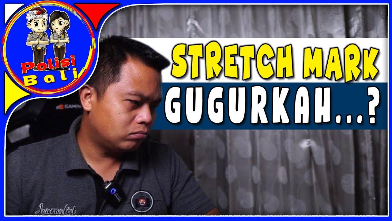 Apakah Stretch Mark Bisa Masuk Polisi atau GUGUR