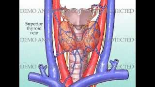 Thyroidectomy With Harmonic Scalpel