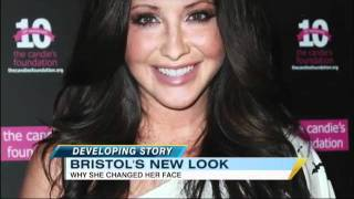 Bristol Palin Face Change: Plastic Surgery or Dental Work?