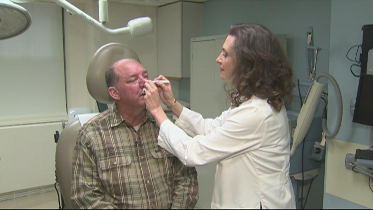Skin Cancer Laser Treatment Youtube