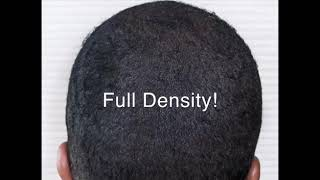 African American Men with Hair Loss - non surgical solution in a 1 day.