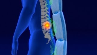 Magnetoterapia pulsante Biomag - información general para los interesados