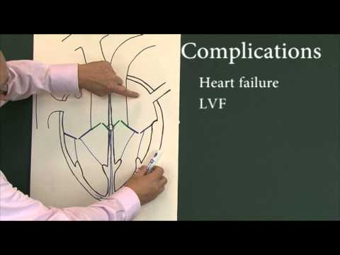 Heart disease 6, Complications of myocardial infarction