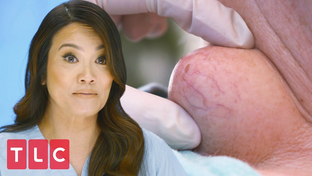 Download Squeezing a Throbbing Neck Cyst | Dr. Pimple Popper