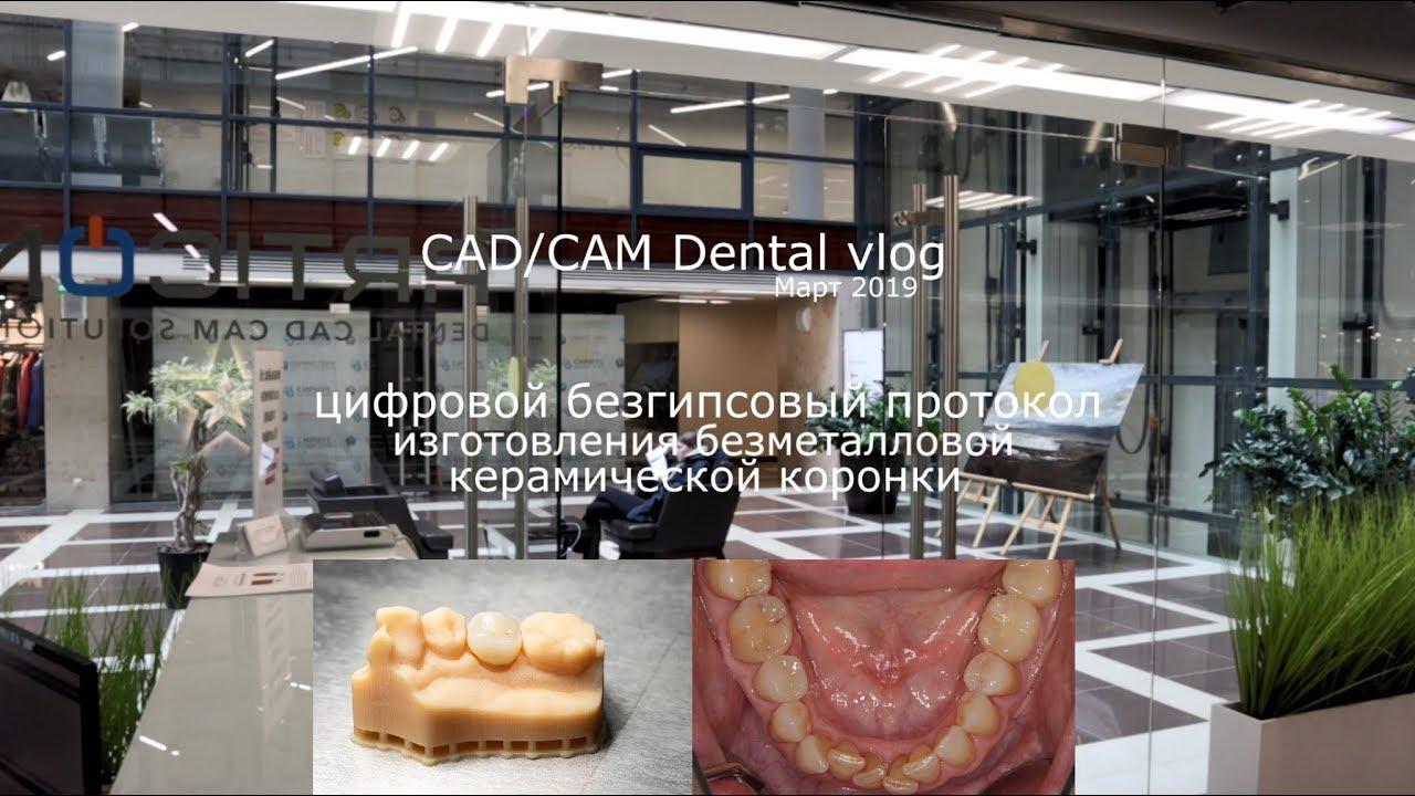 VLOG CAD/CAM DENTAL: Март 2019 - безгипсовый протокол - Medit, Exocad,  e maxCAD, Imes Icore 140i