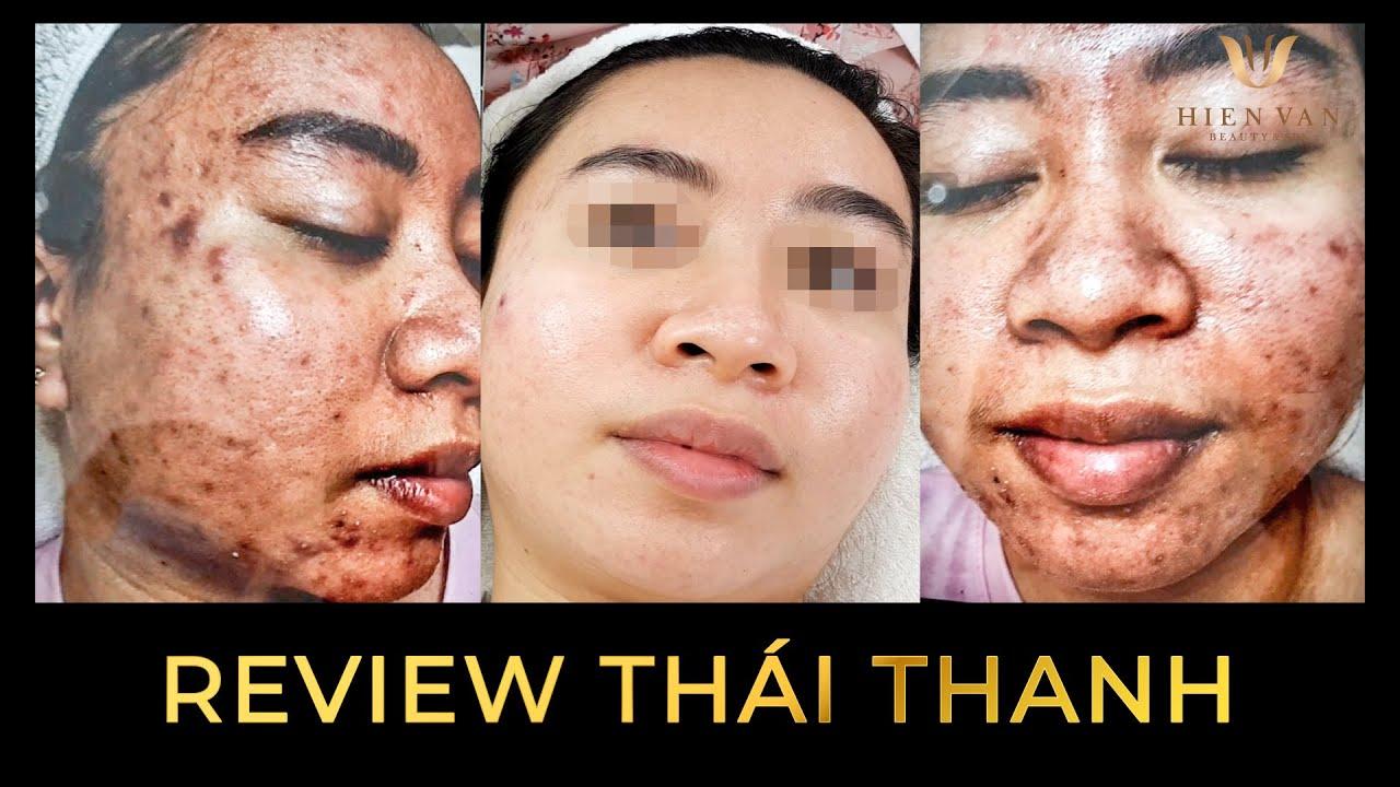 Điều trị mụn uy tín, hiệu quả nhất TPHCM tại Hiền Vân Spa I Huỳnh Thái Thanh I Bài 433